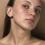 Behandelen van littekens No Nonsense Beauty